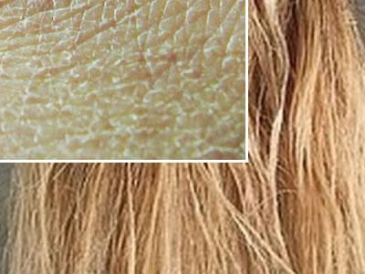 dry-skin-dry-hair